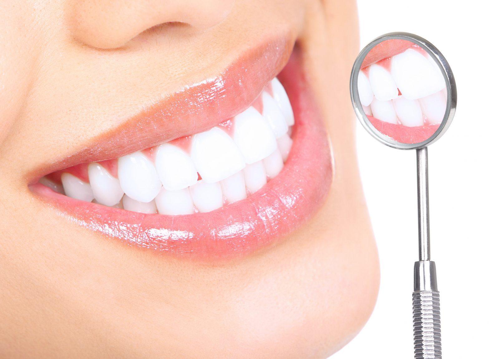 clareamento dental a laser e profissional