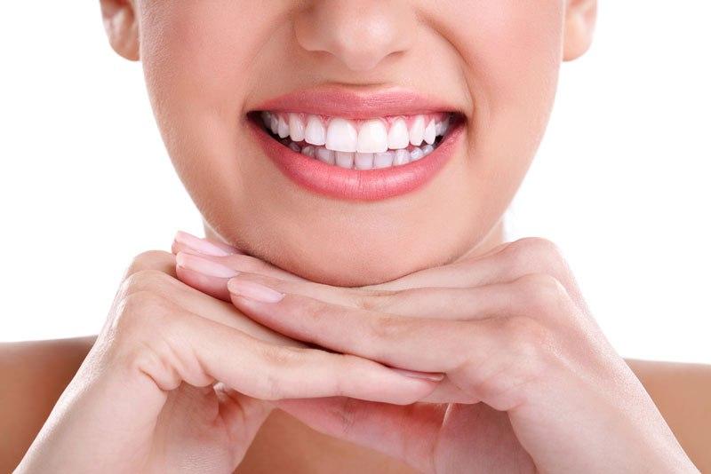 moldura clareamento dental