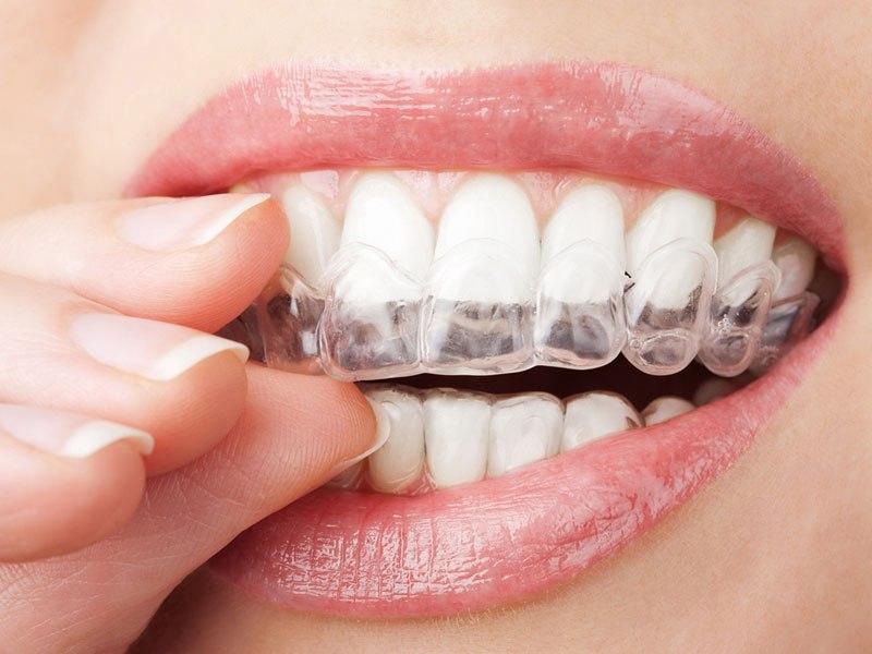 ortodontia-invisivel